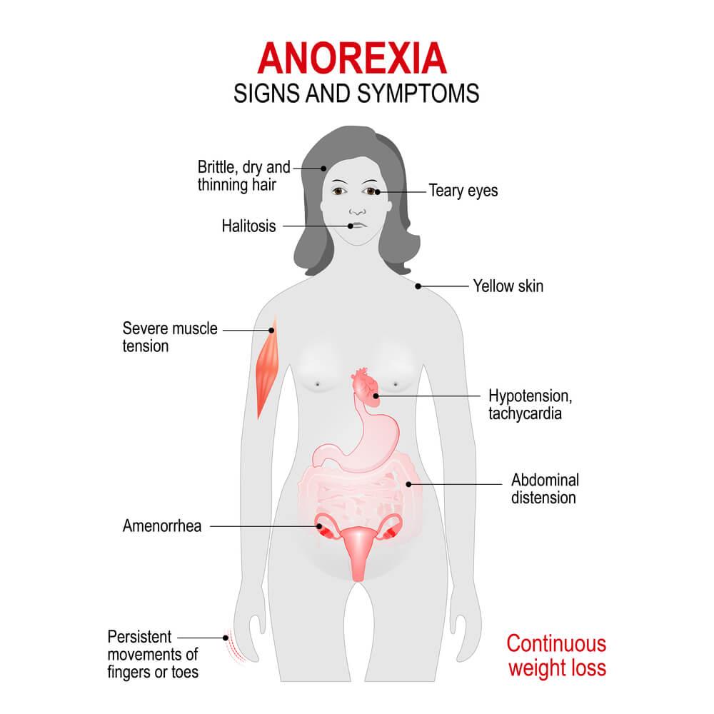 anorexia signos síntomas