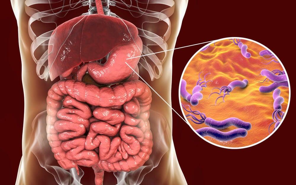 helicobacter pylori estómago infección gastrointestinal