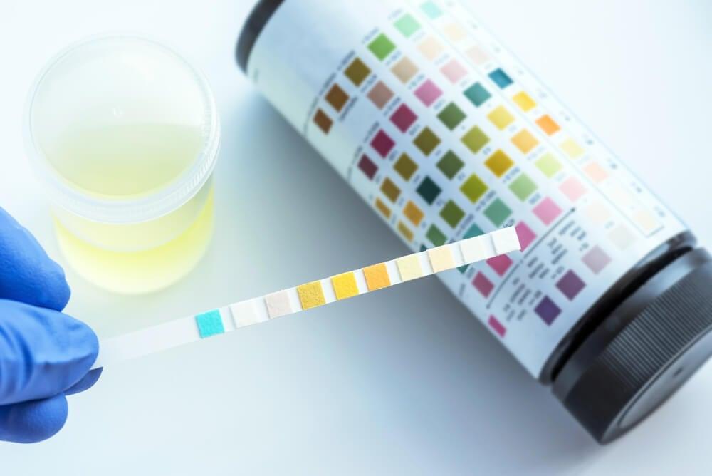 Monurol, tratamiento para la infección de orina