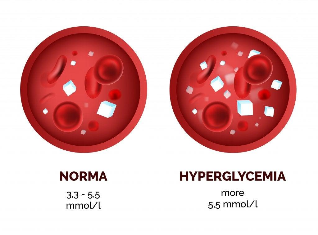 glucosa glucemia sangre eritrocitos diabetes