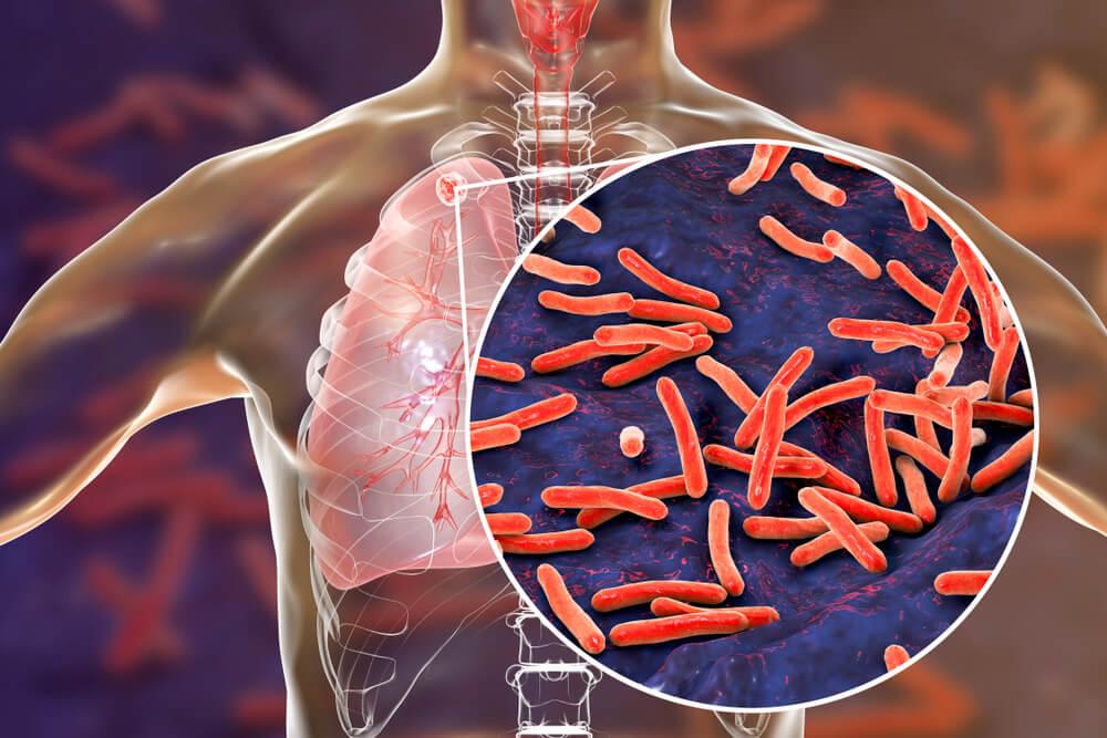 antibiotici, micobatteri della tubercolosi