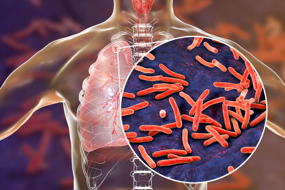 tuberculosis mycobacteria bacteria antibióticos bacilo
