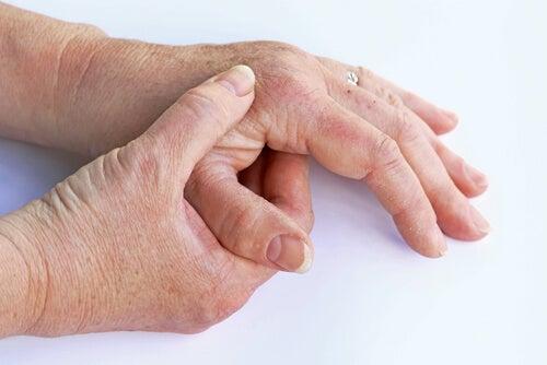 La artrosis: todo lo que debes saber