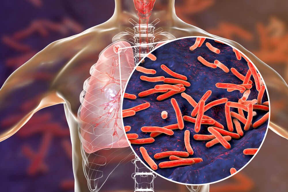 tuberculosis bacteriana bacilo mycobacterium