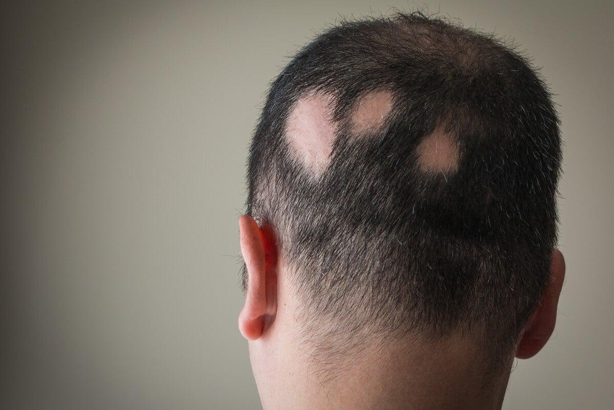 Se cae el cabello de un hombre en placas.