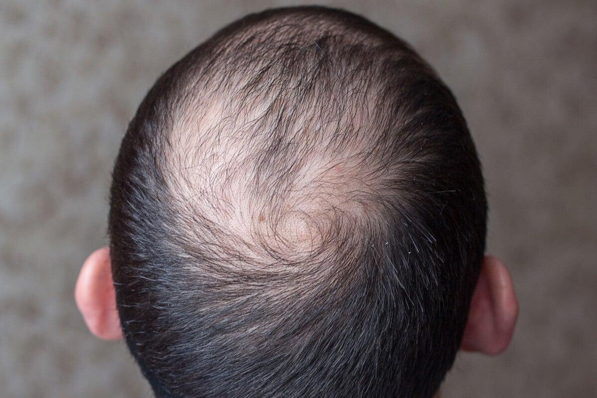 Alopecia masculina.
