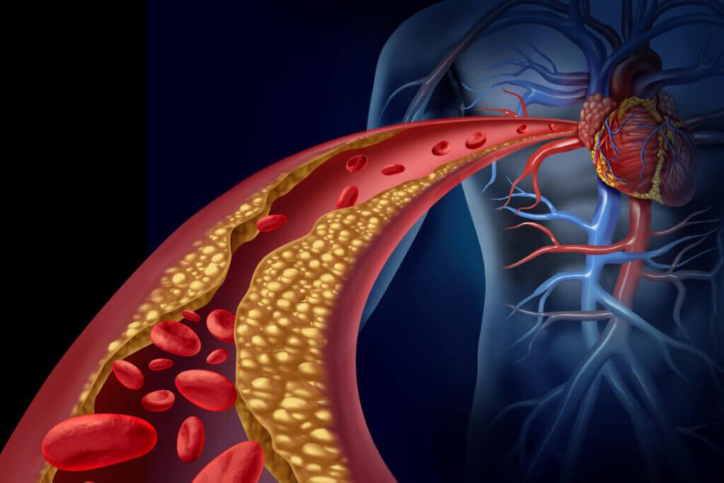 Dieta semanal para bajar los triglicéridos y el colesterol alto