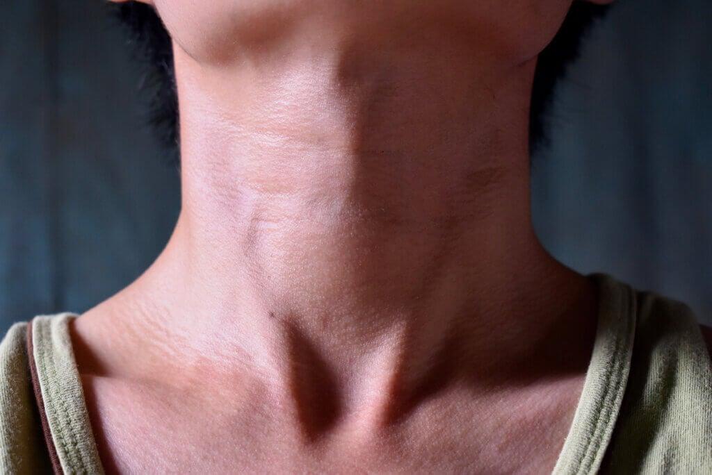 Hipertiroidismo: síntomas, causas y tratamiento
