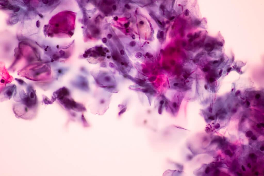 Imagen microscópica de Candida albicans.