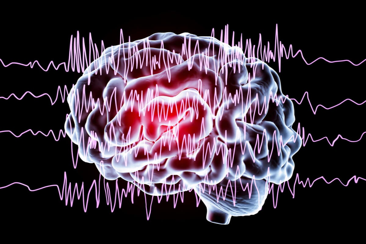 Ácido valproico para la epilepsia.