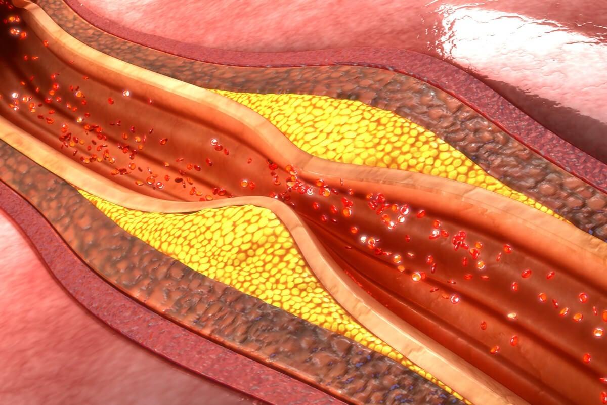 Hipercolesterolemia: síntomas, causas y tratamiento