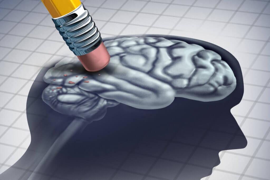 Pérdida de neuronas en la enfermedad de Huntington.