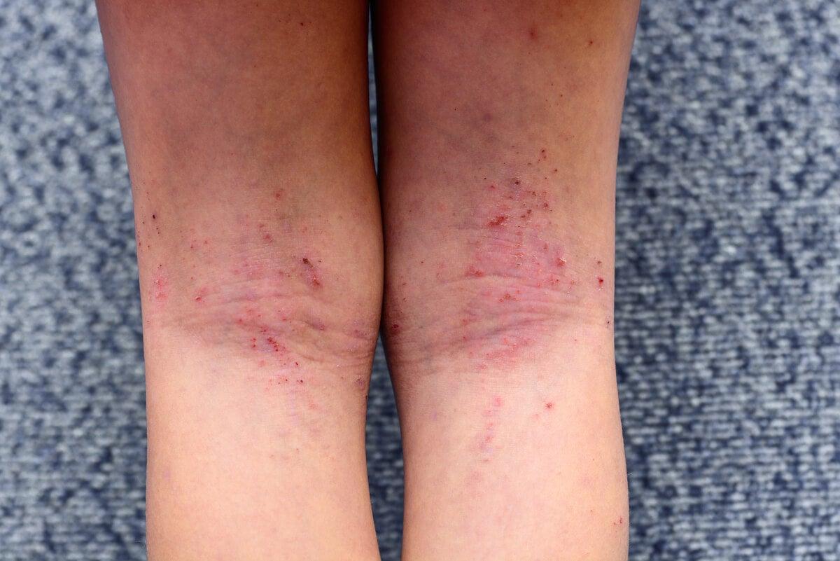 Dermatitis en las piernas.