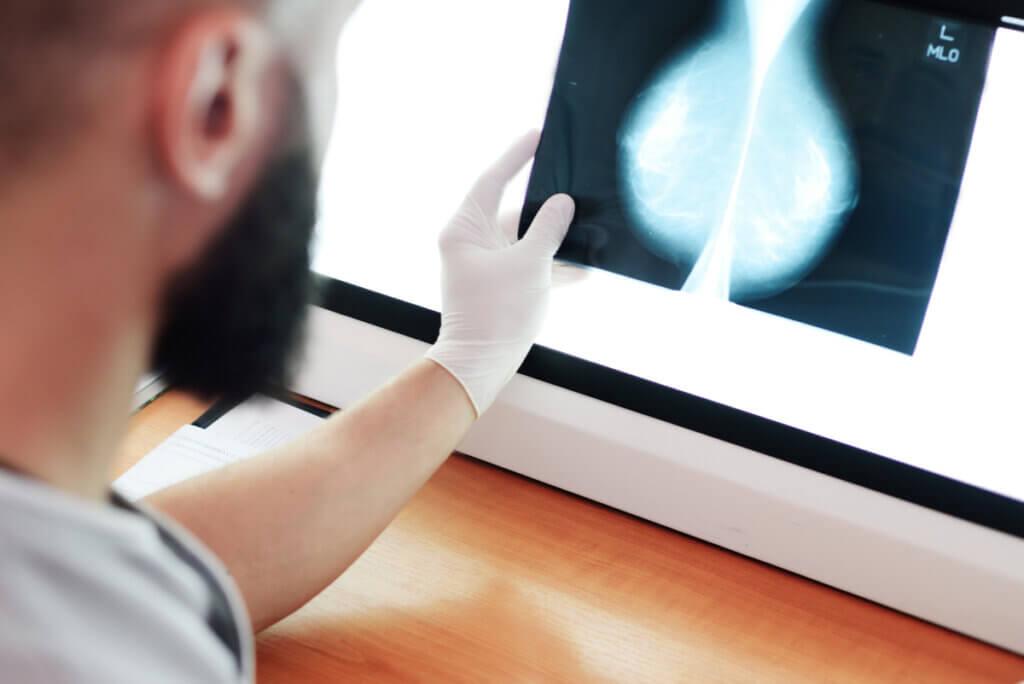 Doctor lee una mamografía.