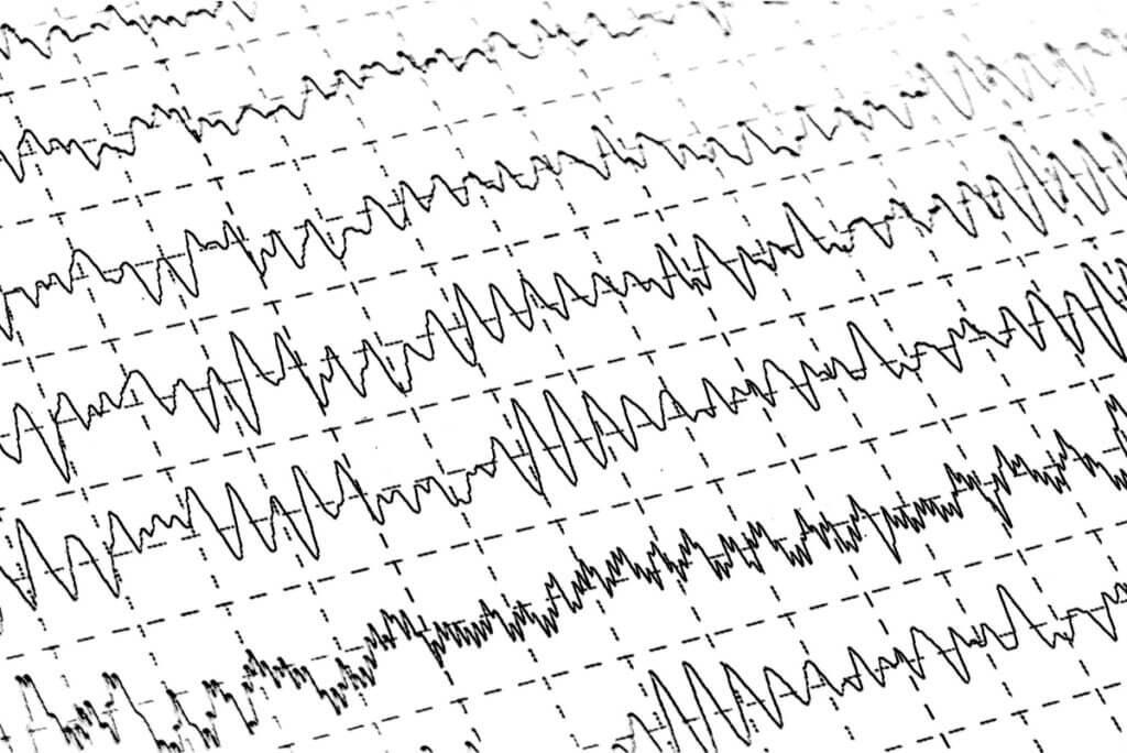 Electroencefalograma en el sueño.