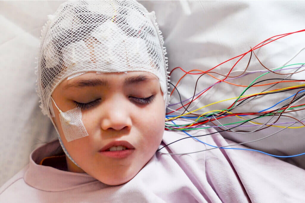 Electroencefalograma en una niña.