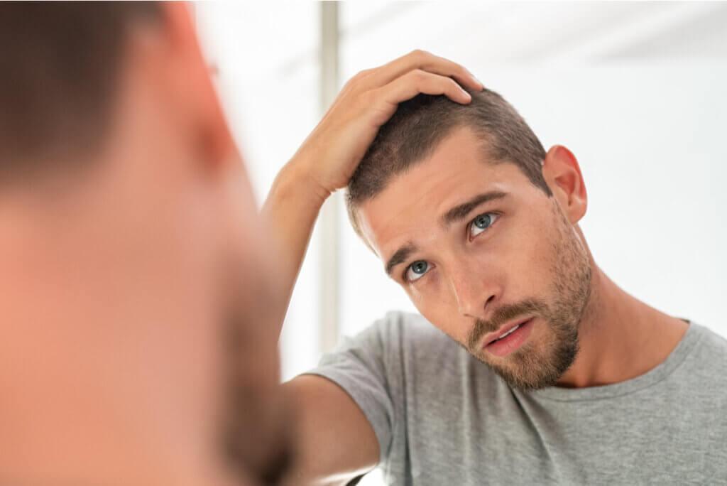 ¿Por qué se cae el cabello? Principales causas