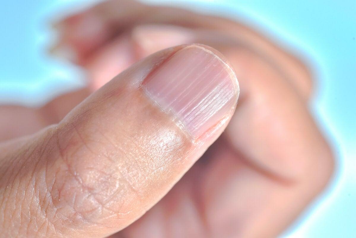 ¿Por qué aparecen líneas en las uñas y cómo eliminarlas?