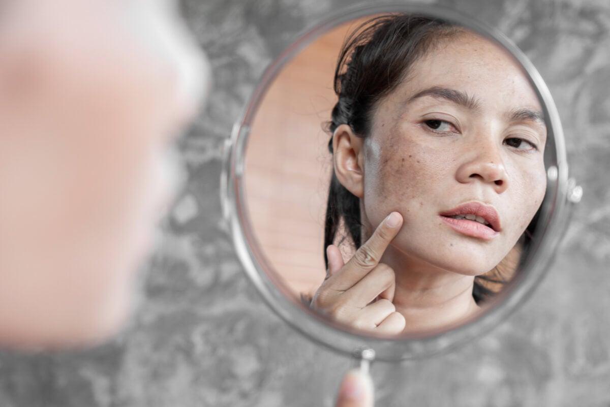 Melasma: síntomas, causas, prevención y tratamiento