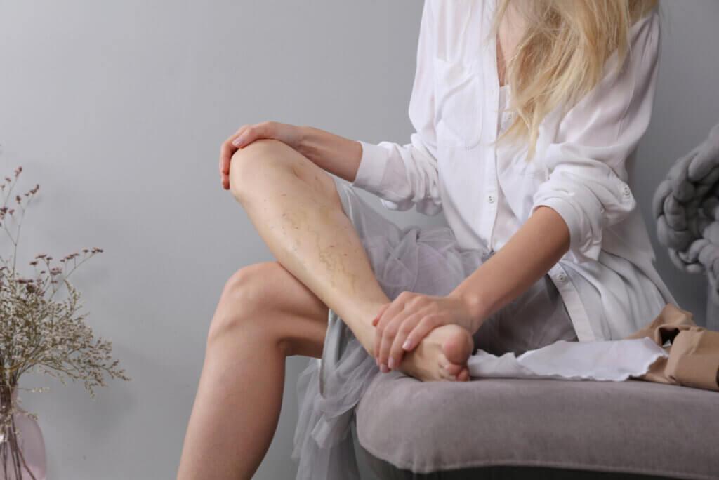 Mujer aprieta su pierna con coágulos por trombosis venosa profunda.