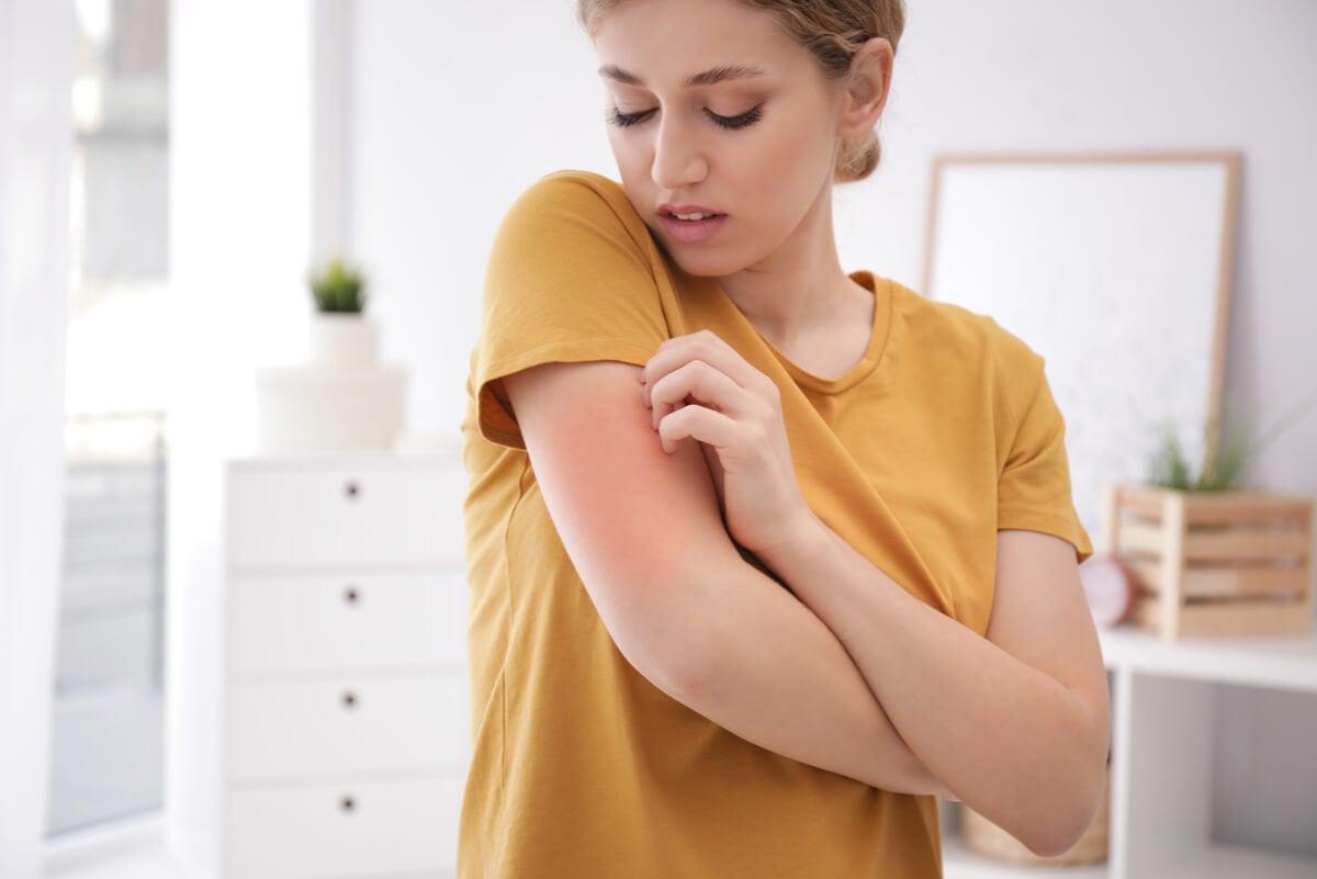 ¿Qué es la dermatitis atópica?