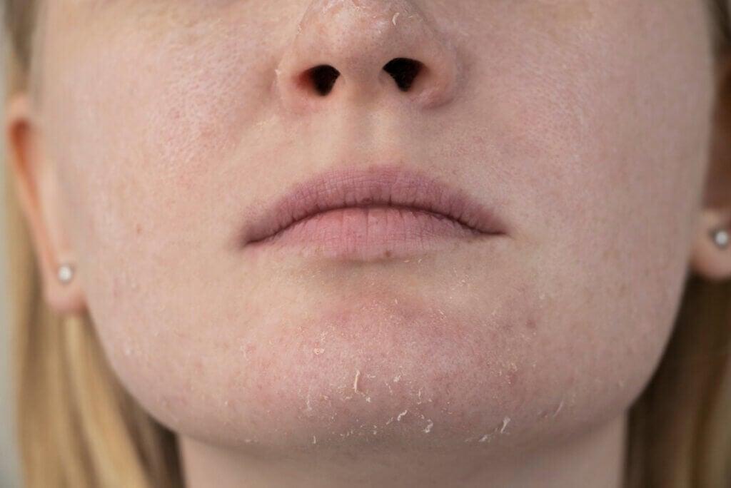 Piel seca en el rostro.