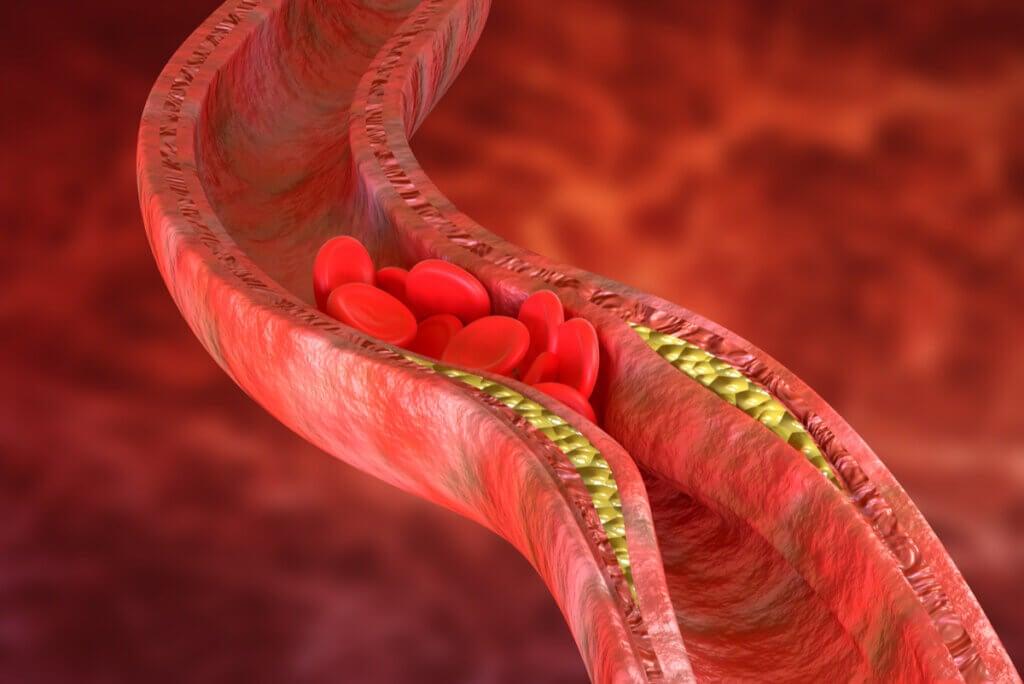 Aterosclerosis: síntomas, causas y tratamiento