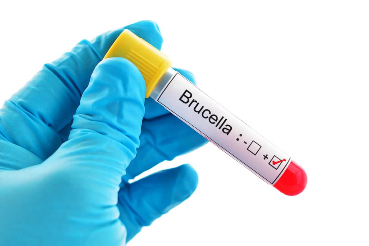 Brucelosis: síntomas, causas y tratamiento