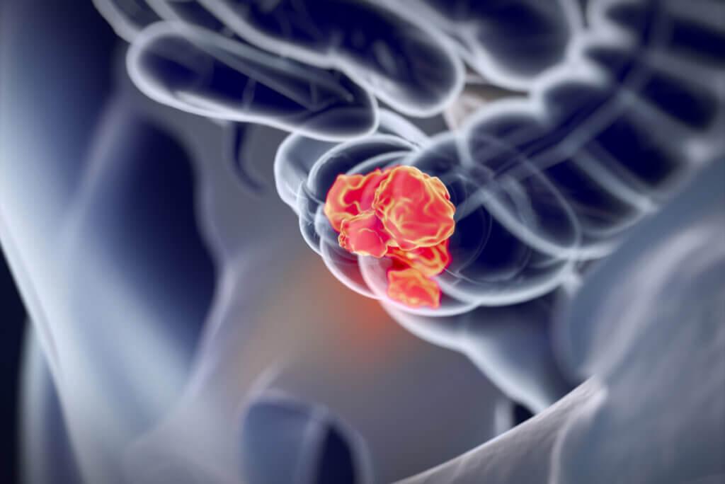 Anatomía del cáncer de colon.