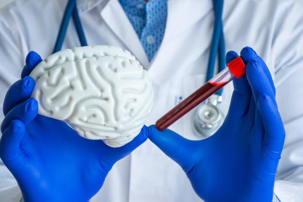 Priones: ¿qué son y qué enfermedades causan?