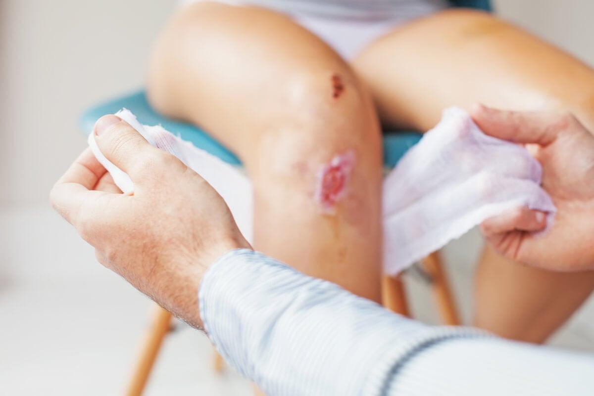 Curación de una herida infectada en un hospital.