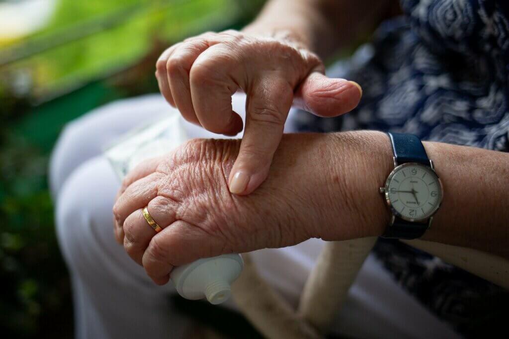 Dolor articular por artritis reumatoide.