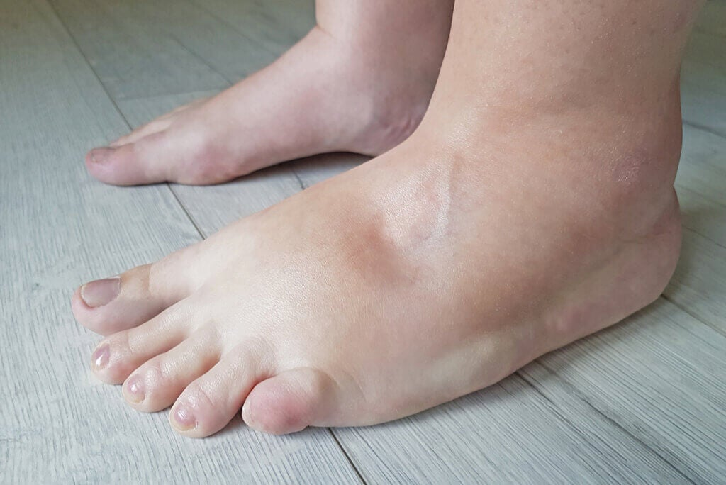 Edemas: causas, tipos, síntomas y tratamientos