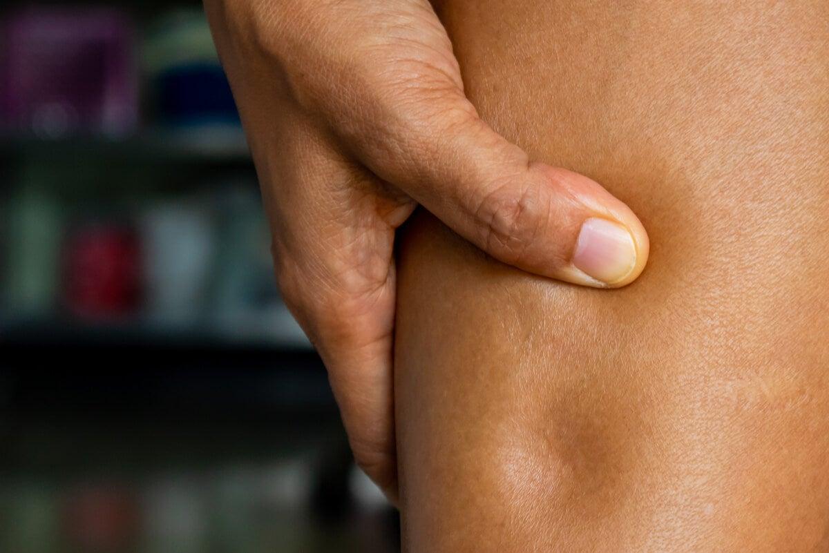 Entre las enfermedades renales comunes está el síndrome nefrótico