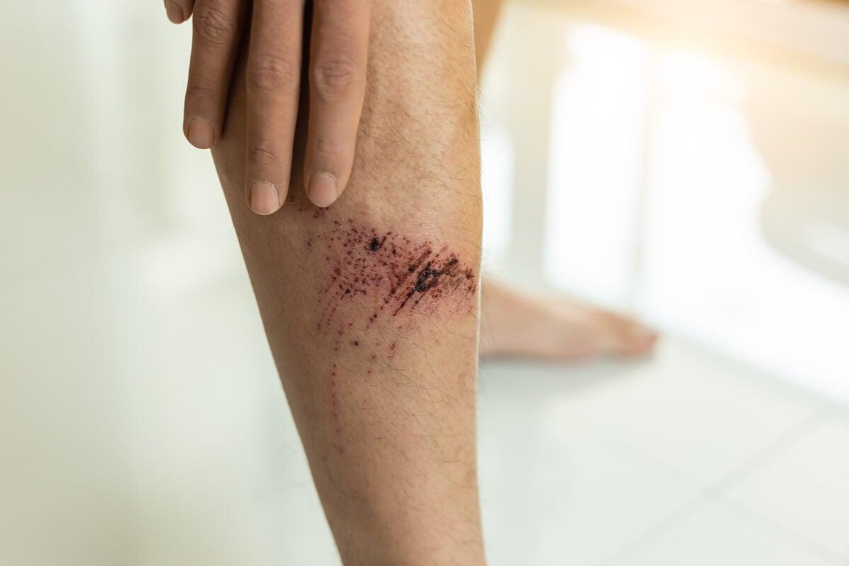 Herida superficial en pierna.