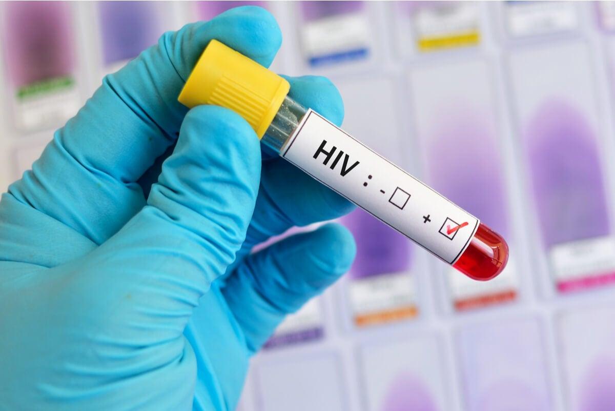 Prueba de carga viral en VIH.