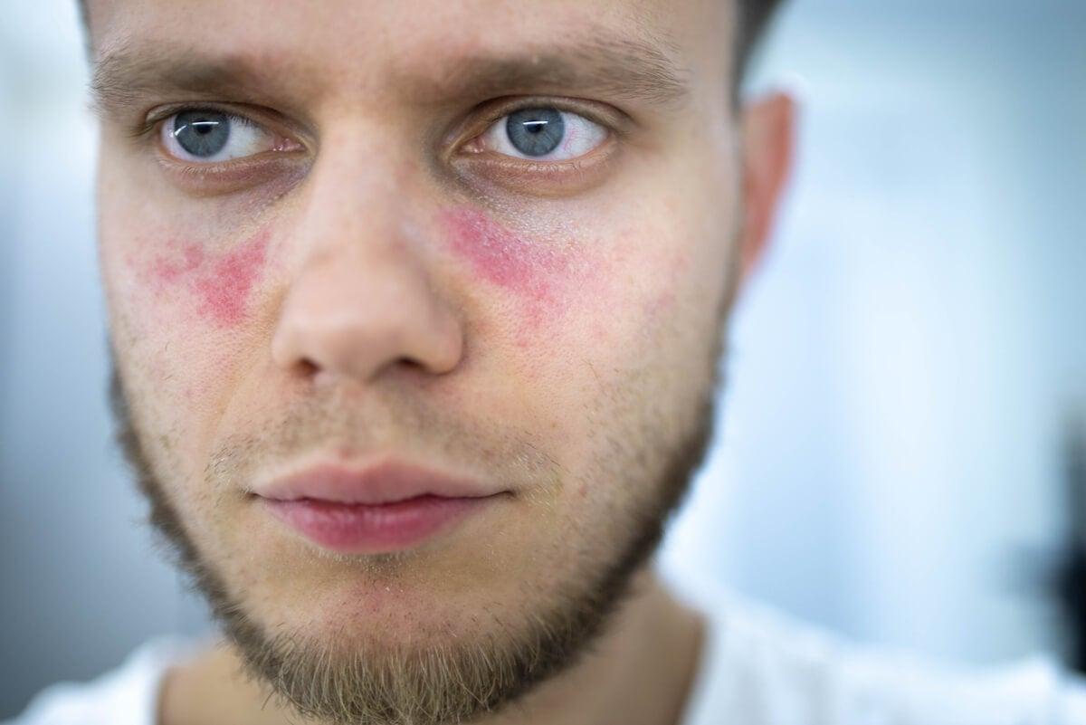 Hombre con lupus en el rostro.