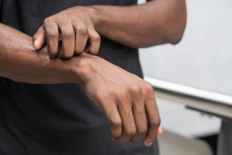 Trastorno por excoriación (dermatilomanía): ¿en qué consiste?