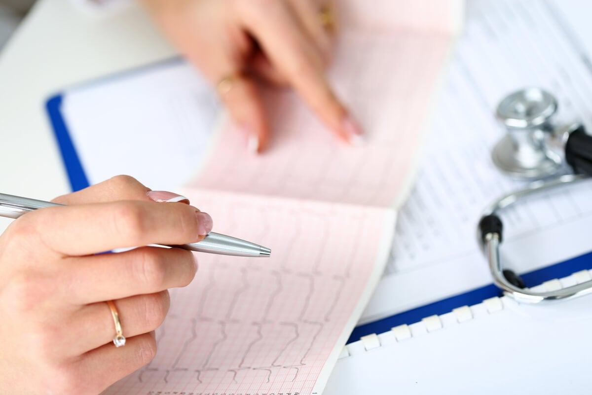 Médico lee un electrocardiograma.