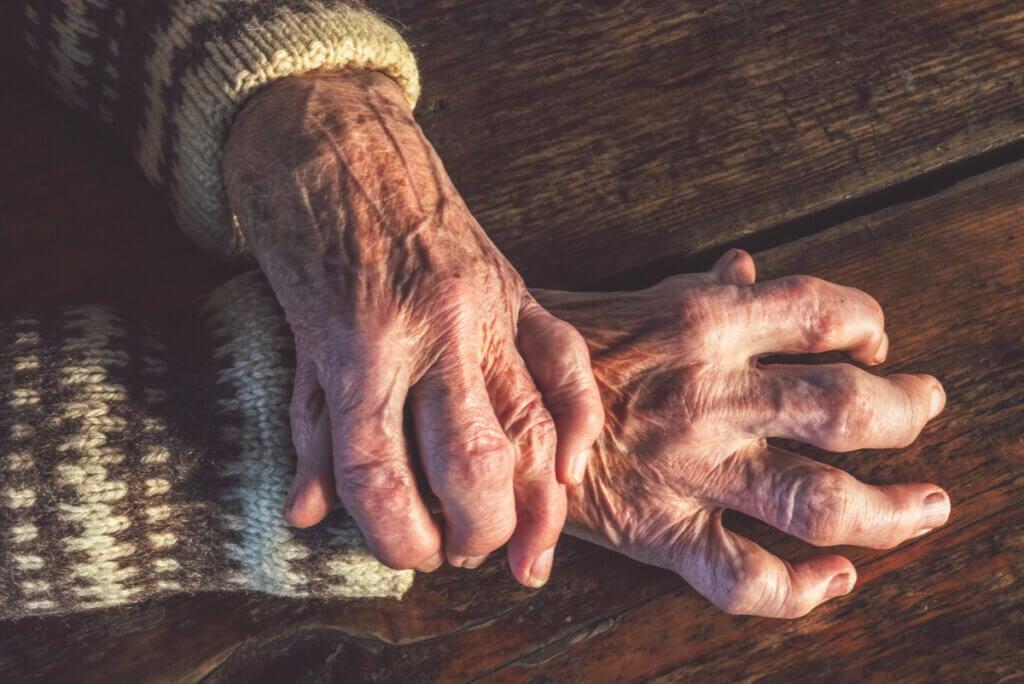 Artritis reumatoide: síntomas, causas y tratamientos