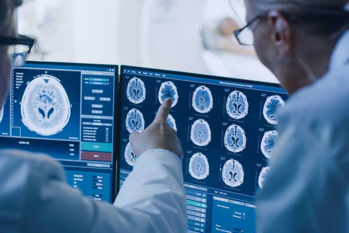 Tomografía para el diagnóstico de derrame cerebral.