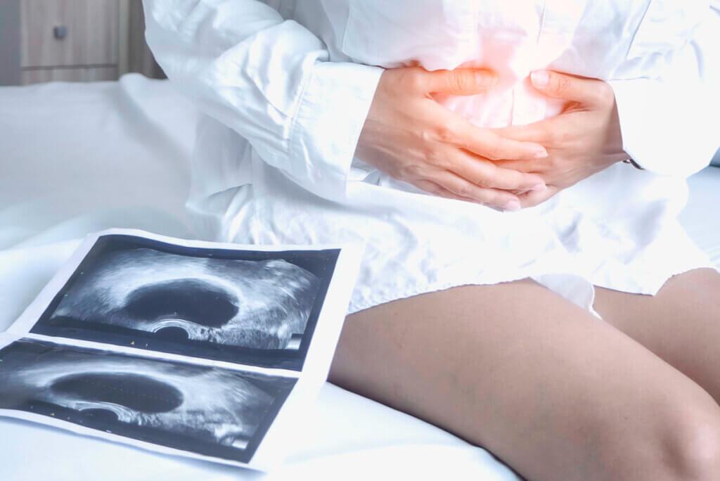 Endometriosis: síntomas, causas y tratamientos