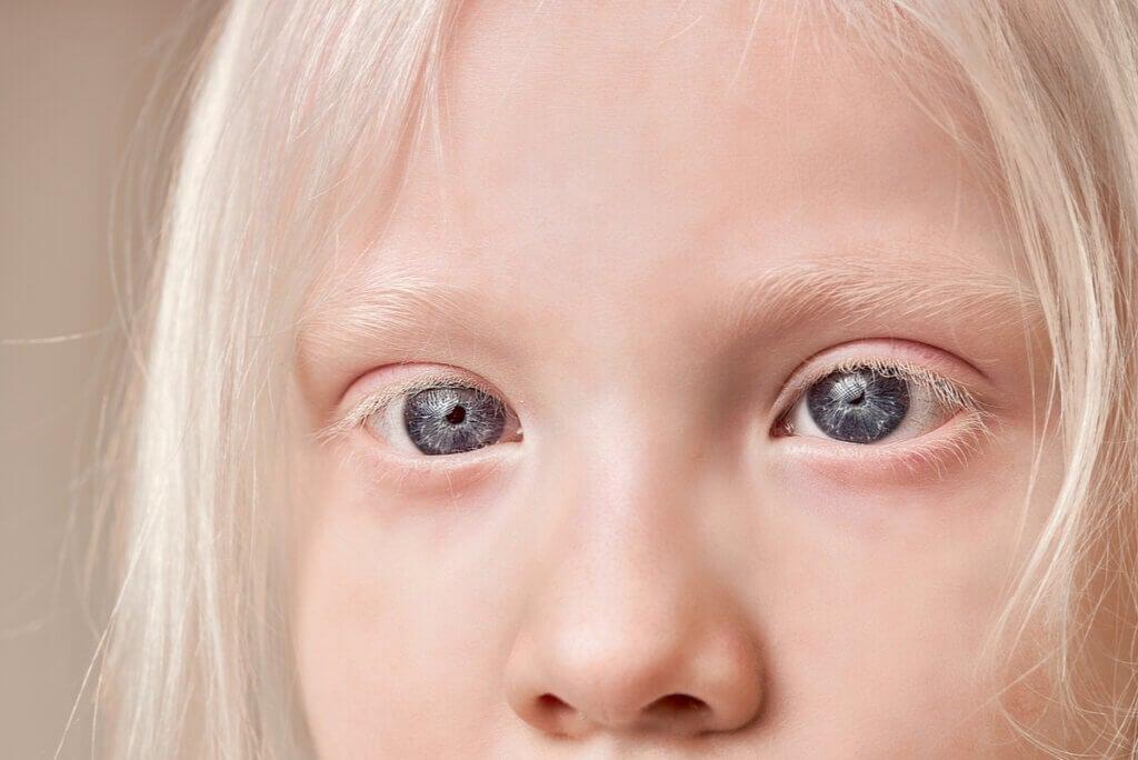 Albinismo ocular en un joven.