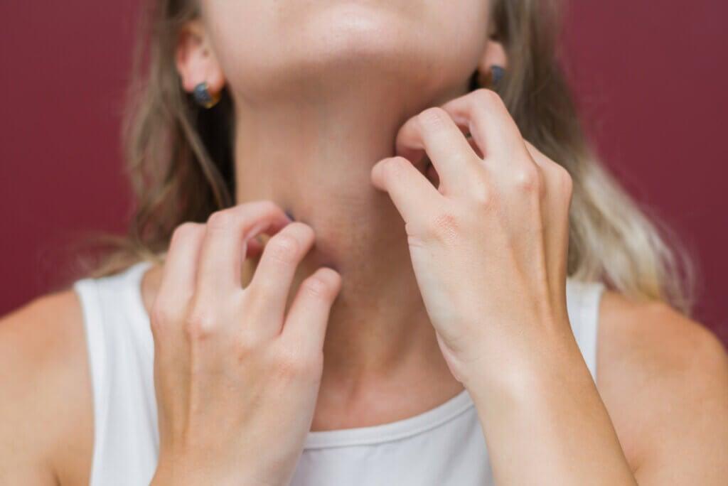 Mujer con trastorno por excoriación no puede dejar de rascarse.