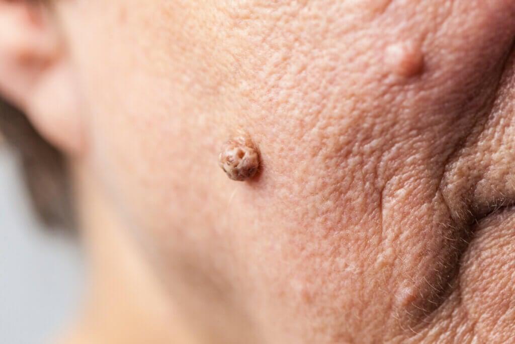 Verrugas: tipos, características y cómo eliminarlas