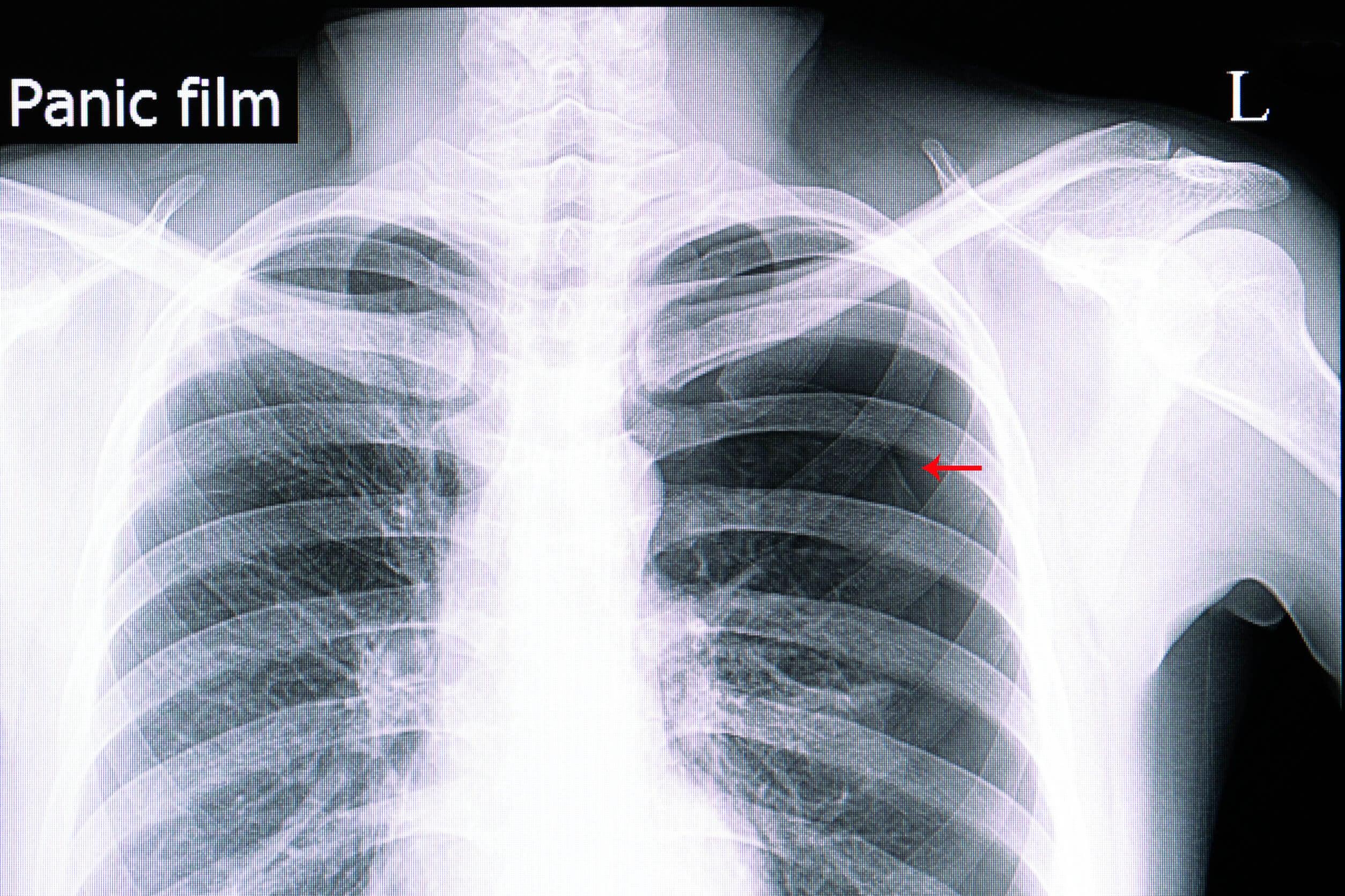 Lo pneumotorace può essere diagnosticato attraverso la radiografia polmonare