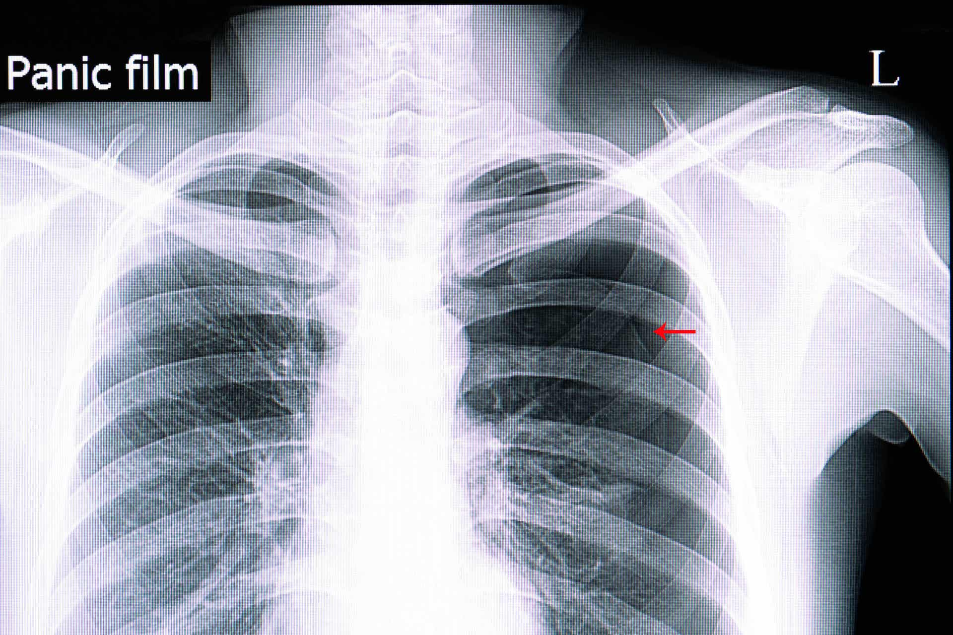 El neumotórax puede diagnosticarse de varias maneras.
