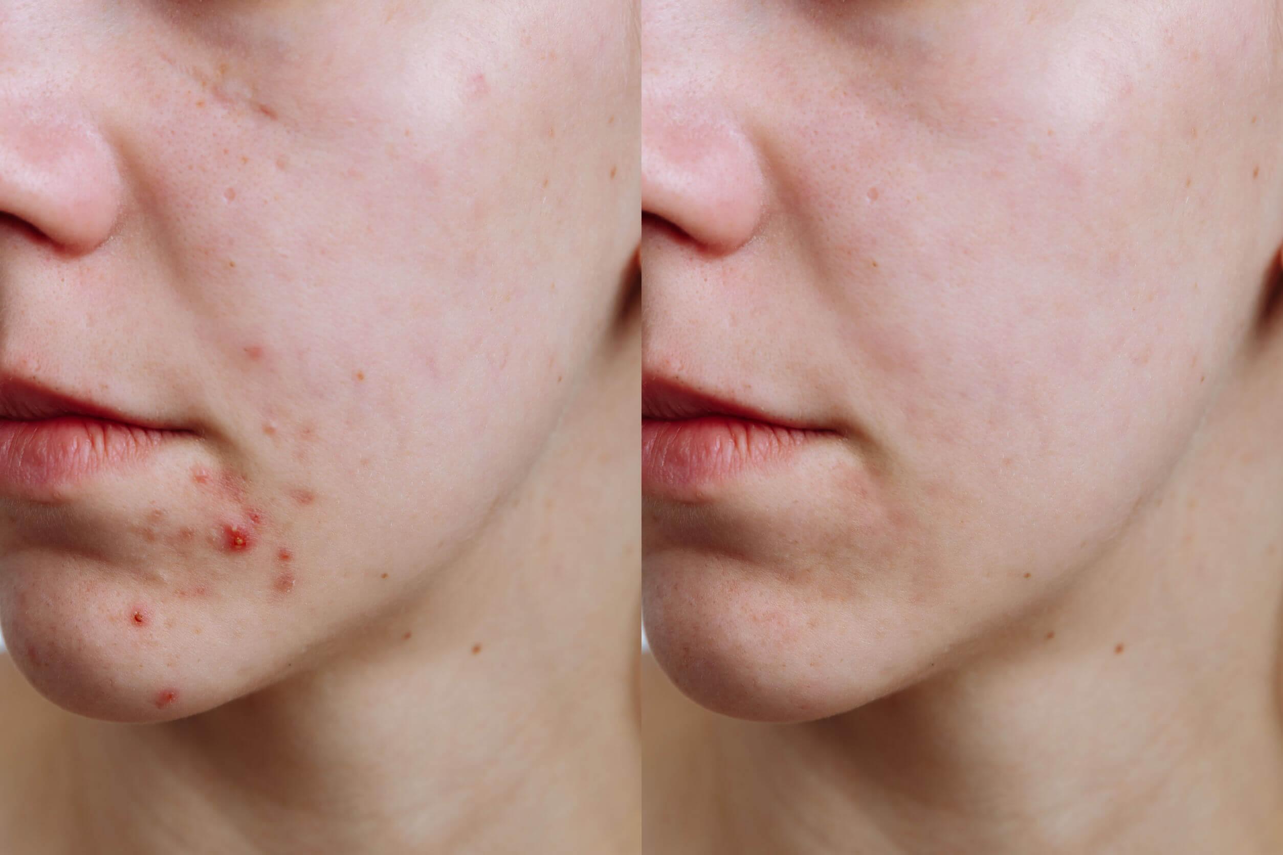Os efeitos do clima na pele são diversos.