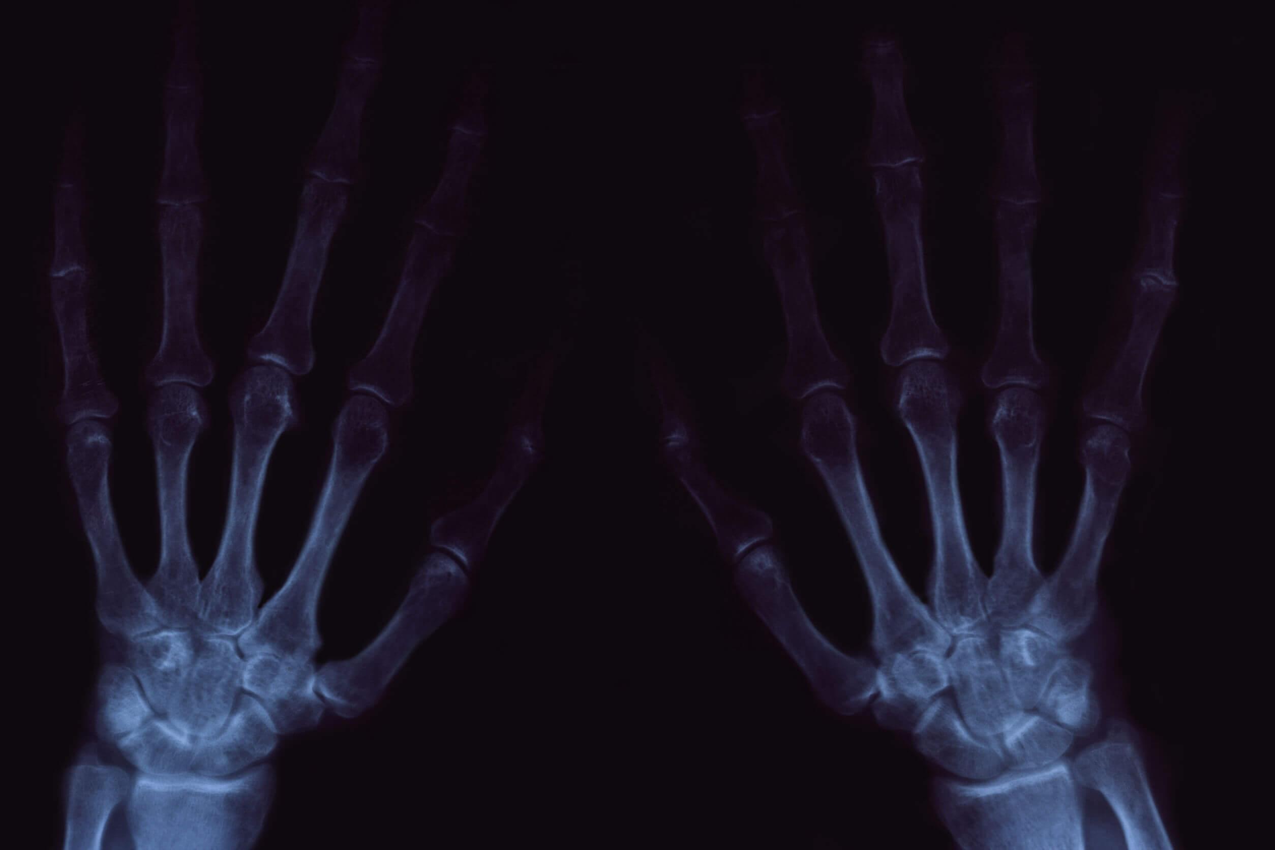 O rangido nas articulações pode ser doloroso nos casos de artrose.