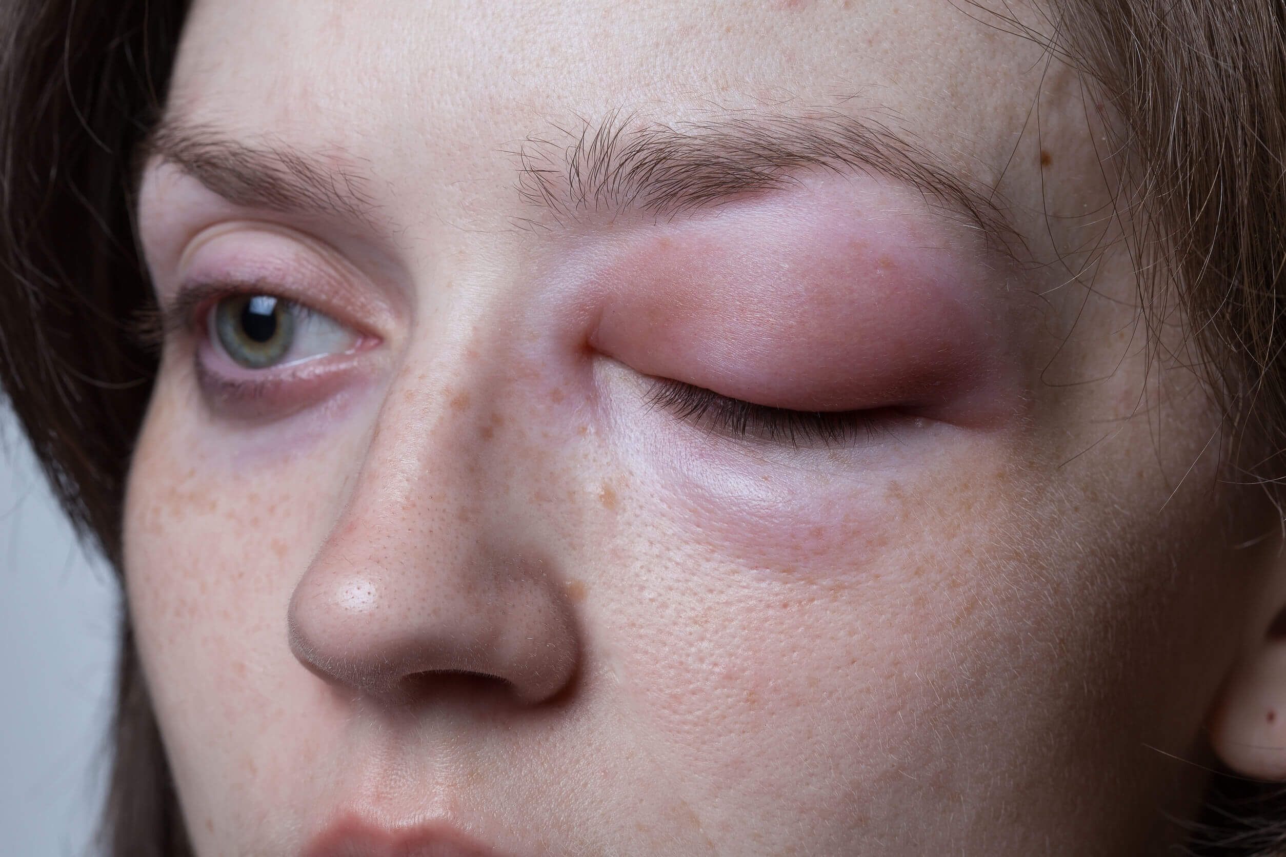 Allergic reactions can swell the eyes.